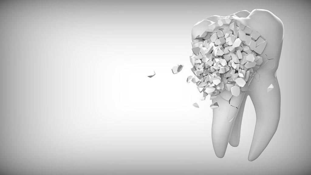 שן מתפוררת